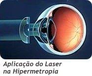 Cirurgia Laser Procedimento