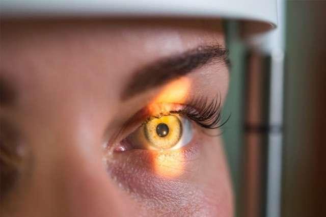 O que é retina?