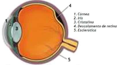 Vítreo e Retina